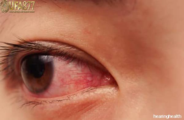 อาการแสบตา